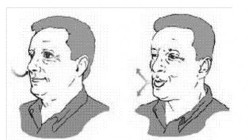 Kỹ thuật thở chúm môi cho người mắc COPD